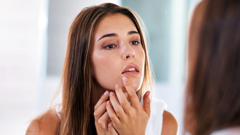 kako otvoriti pore na licu kod kuće- istiskivanje bubuljica